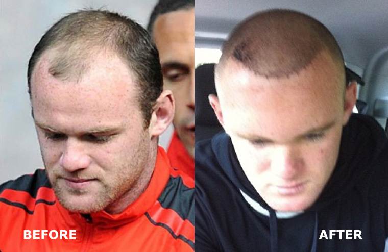 wayne rooney hårtransplantation