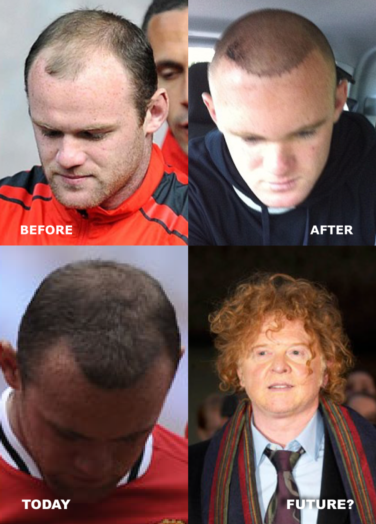 wayne-rooney-hair-transplant-before-and-after-and-today-now-and-future